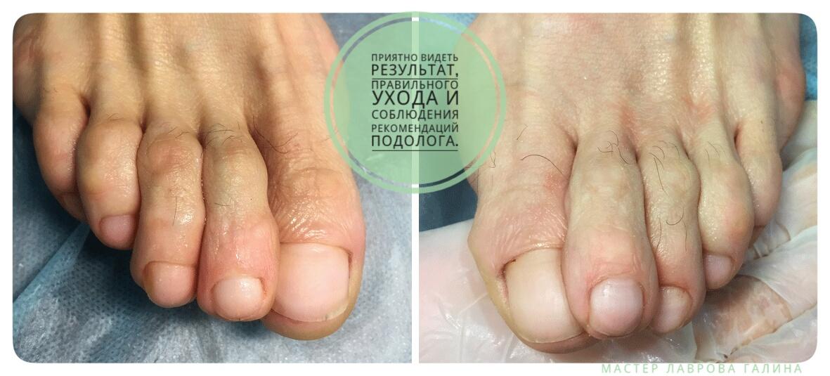 Рекомендации лечения грибка ногтей