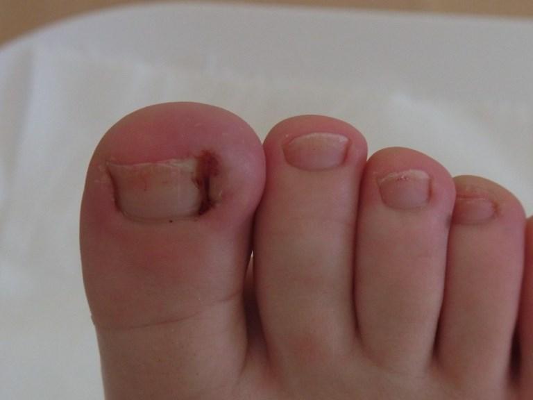 Как лечить ноготь вросший в палец на ноге в домашних условиях