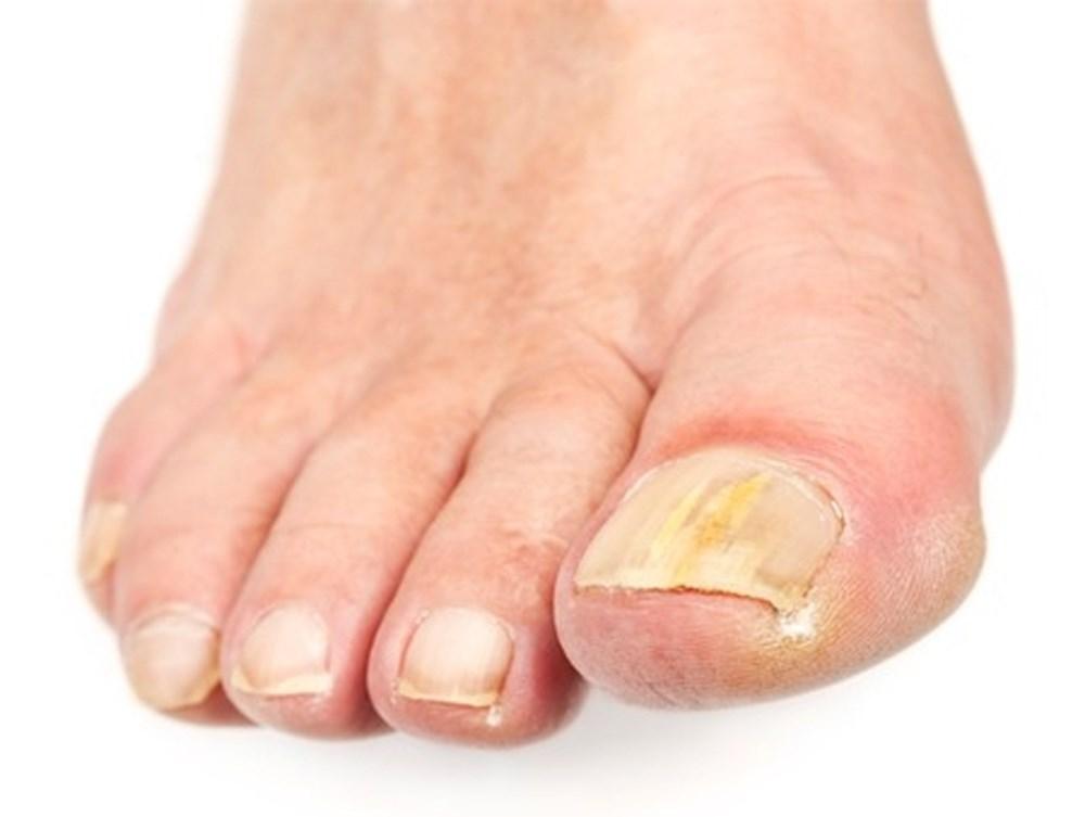 Эффективное лечение от грибка на ногтях ног быстро