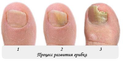 Эффективное лечение от вросшего ногтя