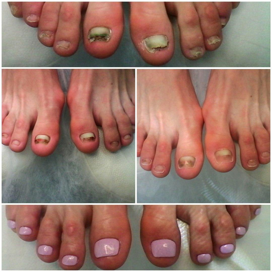Педикюр протезирование ногтях